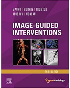 Image-Guided Interventions, 3rd