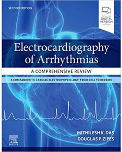 Electrocardiography of Arrhythmias: A Comprehensive Review, 2nd