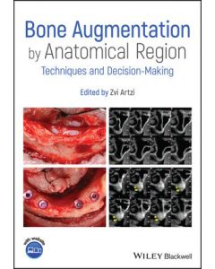 Bone Augmentation by Anatomical Region: Techniques and Decision-Making