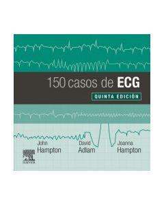 150 Casos de ECG,  5e